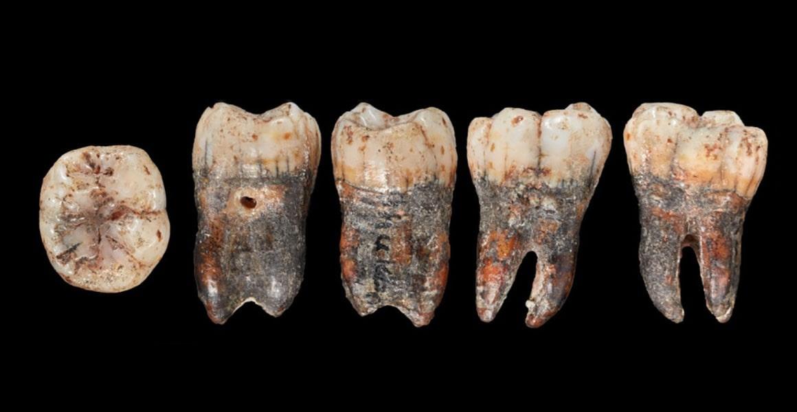 Neandertal dişi