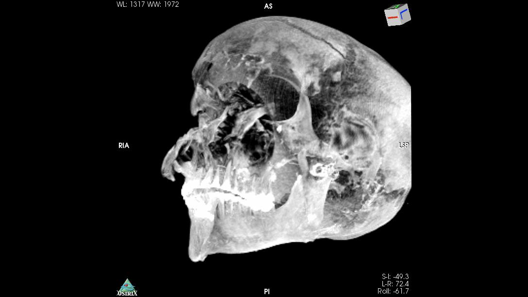 Yüz yaraları şiddetli bir savaş savaşçısı ölümüne işaret eden Seqenenre Taa II'nin kafatasının BT taraması.