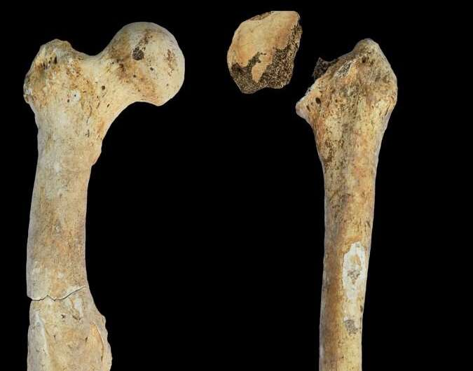 Kuzey Kafkasya'dan erkek bireyin sağ ve sol femur kemikleri.