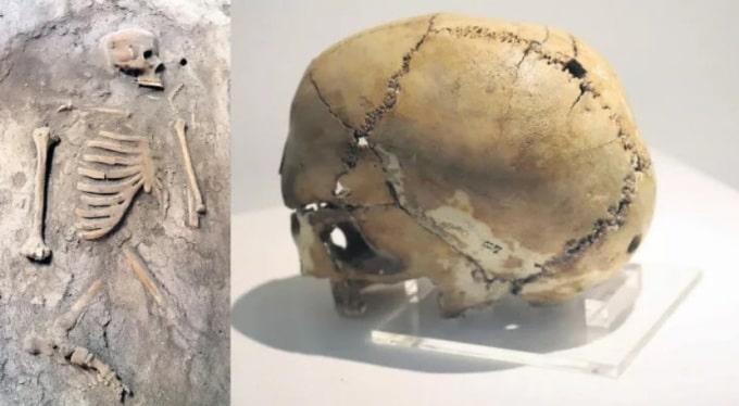 Aşıklı Höyük tarihte bilinen ilk beyin ameliyatının yapıldığı yer