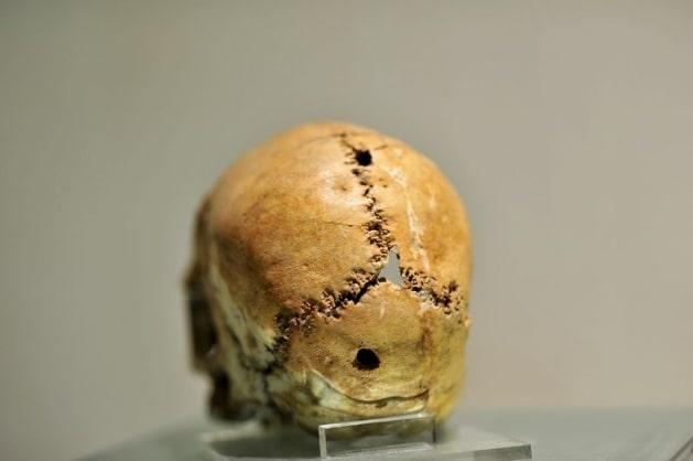 İlk beyin ameliyatının yapıldığı kafatası, tıp tarihi açısından büyük önem taşıyor ve Aksaray Müzesi'nde sergileniyor.